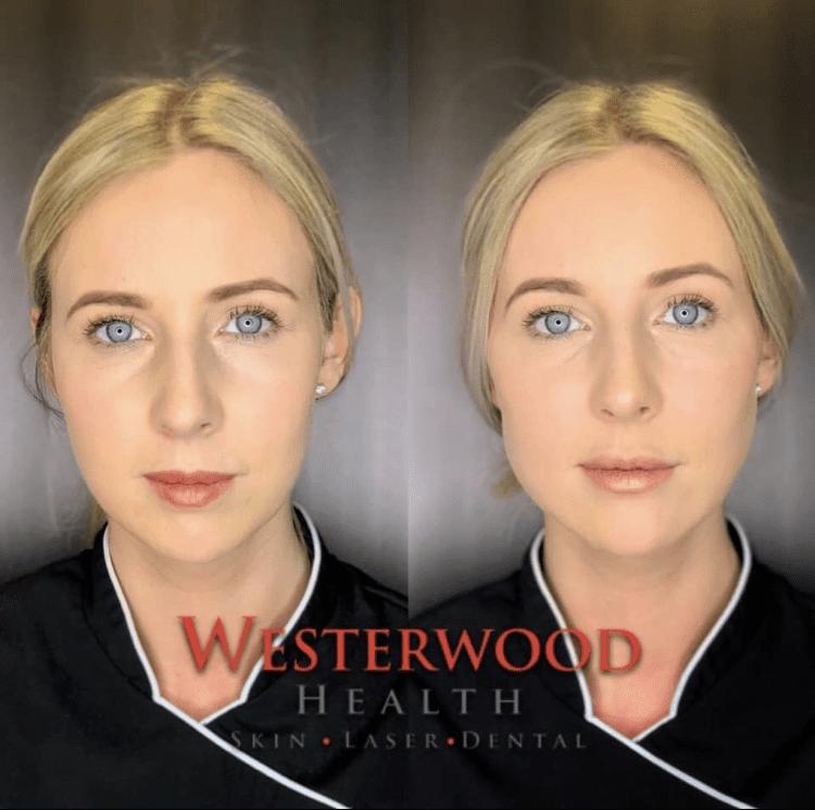 DERMAL FILLER – Westerwood Health